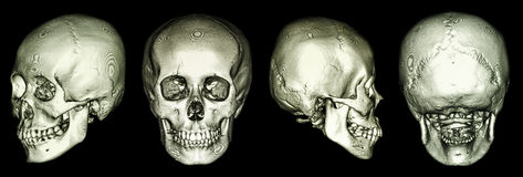 CT  scan of human skull and 3D Stock Photo