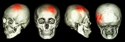 CT scan of human skull and 3D with Stroke Stock Images