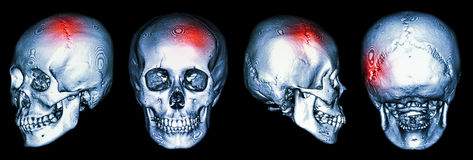 CT scan of human skull and 3D with Stroke (cerebrovascular accident) stock photography