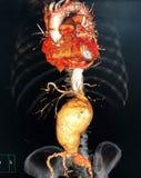 Abdominal aortic aneurysm. CT scan imaging for abdominal aortic aneurysm royalty free stock images