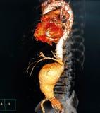Abdominal aortic aneurysm royalty free stock image
