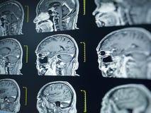 CT scan and MRI of brain : show cerebral infarct , intracerebral hemorrhage. Brain tumor stock photos