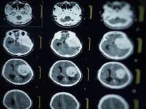 CT scan and MRI of brain : show cerebral infarct , intracerebral hemorrhage. Brain tumor stock photo