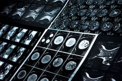 CT scan and MRI images Stock Image