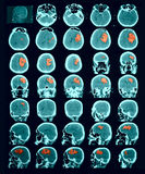 CT Scan Of The Brain. Hemorrhagic Stroke. Stock Photography