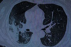 Right lower lobe Pneumonia. CT-Scan of a patient featuring Right Lower Lobe Pneumonia royalty free stock image