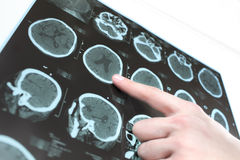 CT scan of the patient's brain and the hand of a doctor. Royalty Free Stock Photo