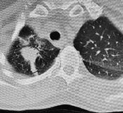 Ct scan right lung lower lobe carcinoma. There is CT scan, about 7 cm right lung lower lobe mass with adjacent satellite nodules concerning for primary lung royalty free stock photo