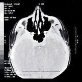 CT Scan Segment. One slice of a brain CT scan; also know as a CAT scan or computerized tomography Royalty Free Stock Photo