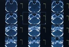 CT scan of thoracic segment. Stock Photo