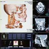 CT scans of human head. Magnetic resonance imaging MRI scan - CT scans of human head on a ultrasound computer monitor Royalty Free Stock Images