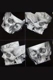 CT van hoofdbeenderen Stock Fotografie