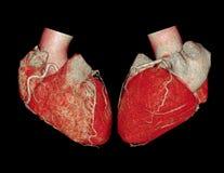 CTA Wieńcowej arterii 3D renderingu wizerunek zdjęcie royalty free