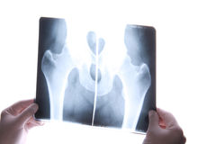 Cuadro de la radiografía Fotografía de archivo libre de regalías