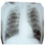 Cuadro de la radiografía Fotos de archivo
