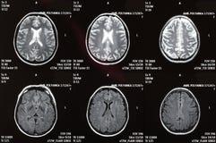 Cuadro de la radiografía de un cerebro Imágenes de archivo libres de regalías