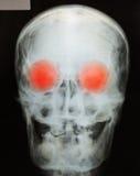 Cuadro de la radiografía del cráneo fotos de archivo libres de regalías