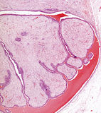 Cuadro del microscopio del fibroadenoma del pecho imagenes de archivo