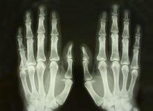 Cuadro delantero de la radiografía de las palmas Fotografía de archivo libre de regalías