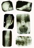 Cuadros de la radiografía Fotos de archivo libres de regalías