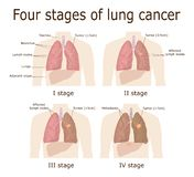 Cuatro etapas de cáncer de pulmón ilustración del vector