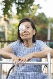 Cubierta del escudo del ojo del uso de los ancianos después de la cirugía de la catarata fotos de archivo