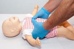 Cudzoziemskiego ciała drogi oddechowe, dławiący dziecko obraz royalty free