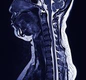 Cuello de MRI Fotos de archivo libres de regalías