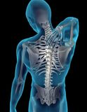 Cuello/dolor de espalda Imágenes de archivo libres de regalías