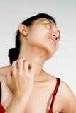 Cuello y cara de la mujer con la erupción de piel Foto de archivo