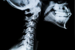 Cuello y mandíbula del rayo x Imagen de archivo