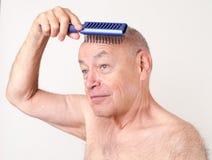 Cuero cabelludo que aplica con brocha del hombre calvo diario de la preparación Fotografía de archivo