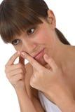 Cuidado de la carrocería - adolescente femenino con problema del acné Imágenes de archivo libres de regalías
