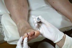 Cuidado de pie - Pedicure - quiropodia Imagenes de archivo