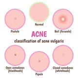 Cuidado de piel del acné Foto de archivo libre de regalías