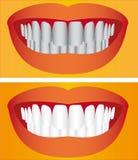 Cuidado dos dentes Ilustração Stock