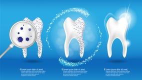 Cuidado oral e conceito dental da saúde Dente limpo e sujo brilhante no fundo azul, processo de cancelamento do dente dentes ilustração stock