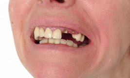 Cuidados dentários, dentes quebrados Imagem de Stock Royalty Free