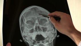 Cuide analizar imagen de investigación humana de la radiografía del cráneo en hospital almacen de video