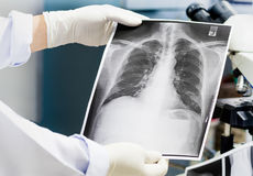 Cuide el examen de una radiografía del pulmón, doctor que mira la película de la radiografía del pecho Imagen de archivo