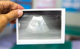 Cuide la mirada de informe obstétrico borroso del papel del ultrasonido en clínica prenatal en el hospital Foto de archivo