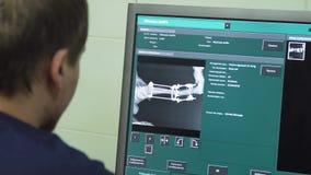 Cuide la mirada de una radiografía en un hospital metrajes