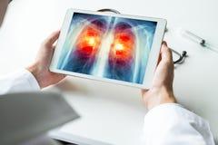 Cuide la observación de una radiografía del cáncer de pulmón en la tableta digital Concepto de la radiología foto de archivo libre de regalías