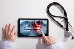 Cuide la pantalla de la mano del ` s y de la tableta de Digitaces que muestra la radiografía de los dientes foto de archivo libre de regalías