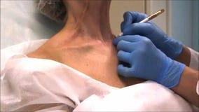 Cuide los puntos de las marcas del dermatólogo en la piel donde ella hará el tratamiento de la belleza metrajes