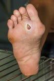 cukrzycowa stopa Zdjęcie Royalty Free