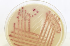 Cultura bacteriana cor-de-rosa no ágar colorido incolor Imagem de Stock Royalty Free