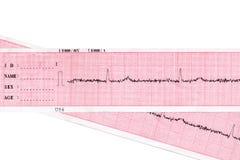 Cuore. Cardiogram immagine stock