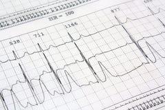 Cuore del ekg dell'elettrocardiogramma Fotografie Stock Libere da Diritti