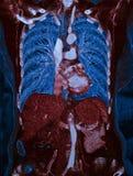 Cuore, polmoni e fegato umani, CT Immagine Stock